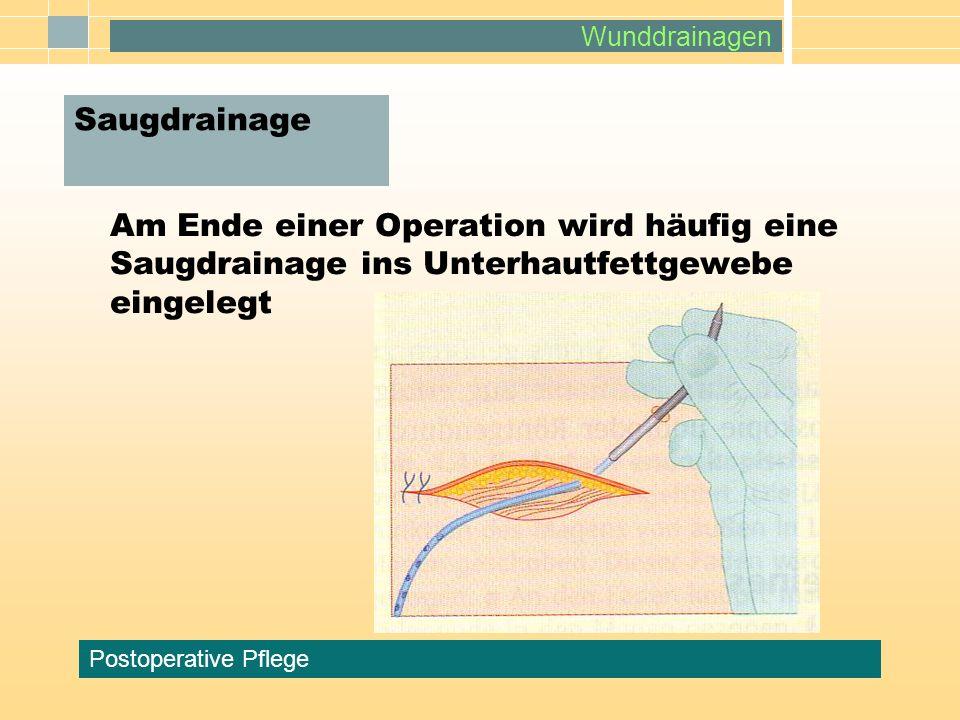 Wunddrainagen Postoperative Pflege Am Ende einer Operation wird häufig eine Saugdrainage ins Unterhautfettgewebe eingelegt Saugdrainage