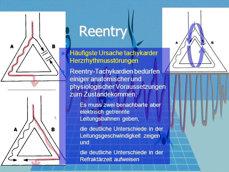 Reentry bei Ischämie: schnelle Leitung um den ischämischen Bezirk herum, langsame Leitung durch die Ischämie zurück