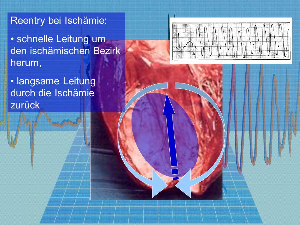 Stabile Tachykardie ohne p-Welle QRS-Komplex schmal QRS-Komplex breit Herzkrank Abs.