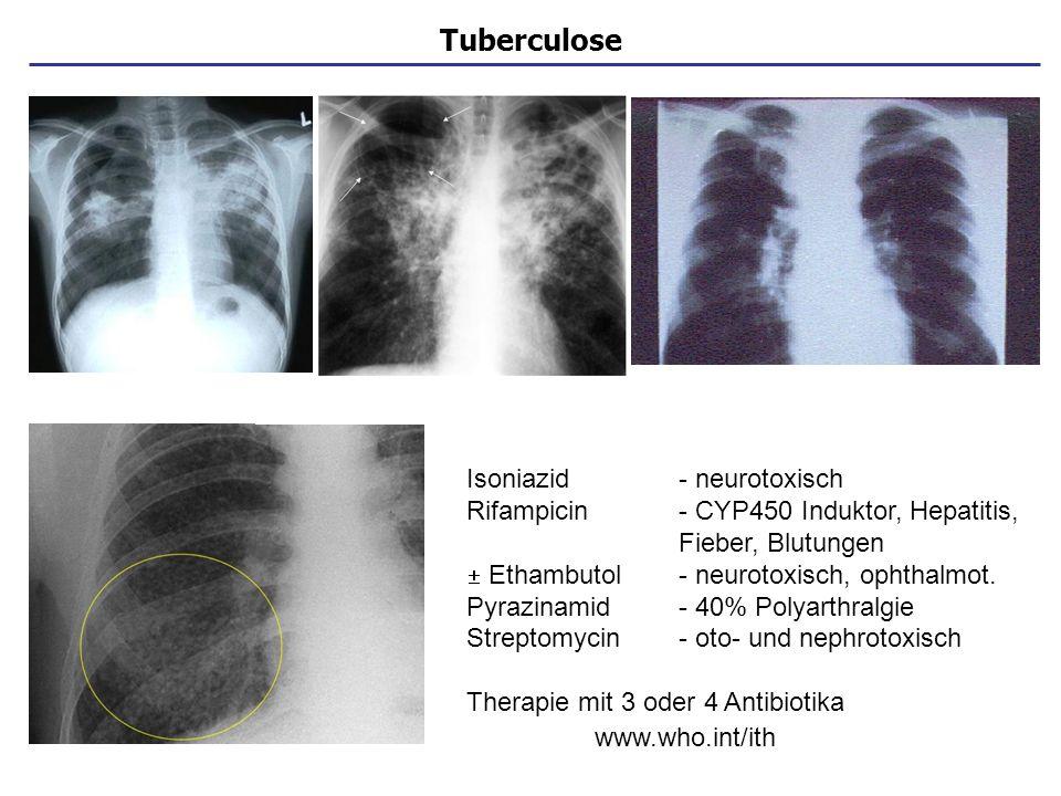 Tuberculose Isoniazid - neurotoxisch Rifampicin- CYP450 Induktor, Hepatitis, Fieber, Blutungen Ethambutol- neurotoxisch, ophthalmot. Pyrazinamid- 40%