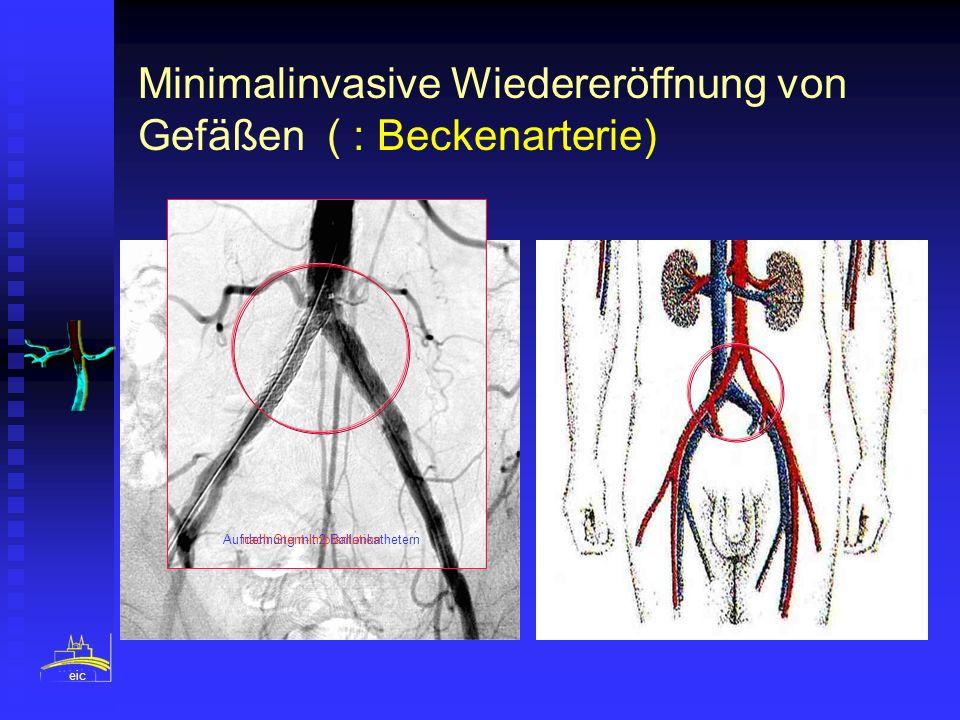 eic Minimalinvasive Wiedereröffnung von Gefäßen ( : Beckenarterie) Aufdehnung mit 2 Ballonkatheternnach Stent-Implantation