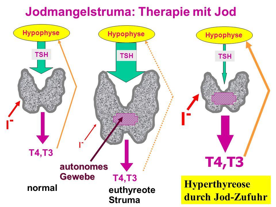 Jodmangelstruma: Therapie mit Jod Hypophyse TSH I-I- T4,T3 normal Hypophyse TSH I-I- T4,T3 euthyreote Struma Hyperthyreose durch Jod-Zufuhr Hypophyse