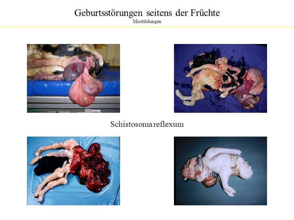 Geburtsstörungen seitens der Früchte Missbildungen Schistosoma reflexum