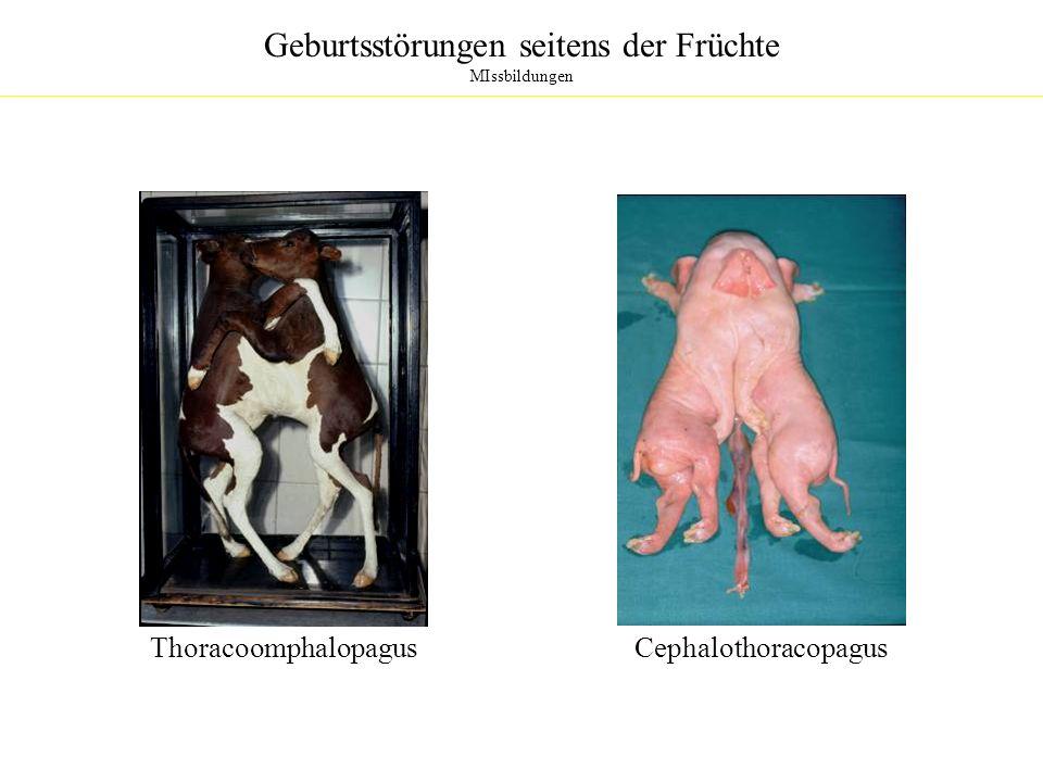 Geburtsstörungen seitens der Früchte MIssbildungen Thoracoomphalopagus Cephalothoracopagus