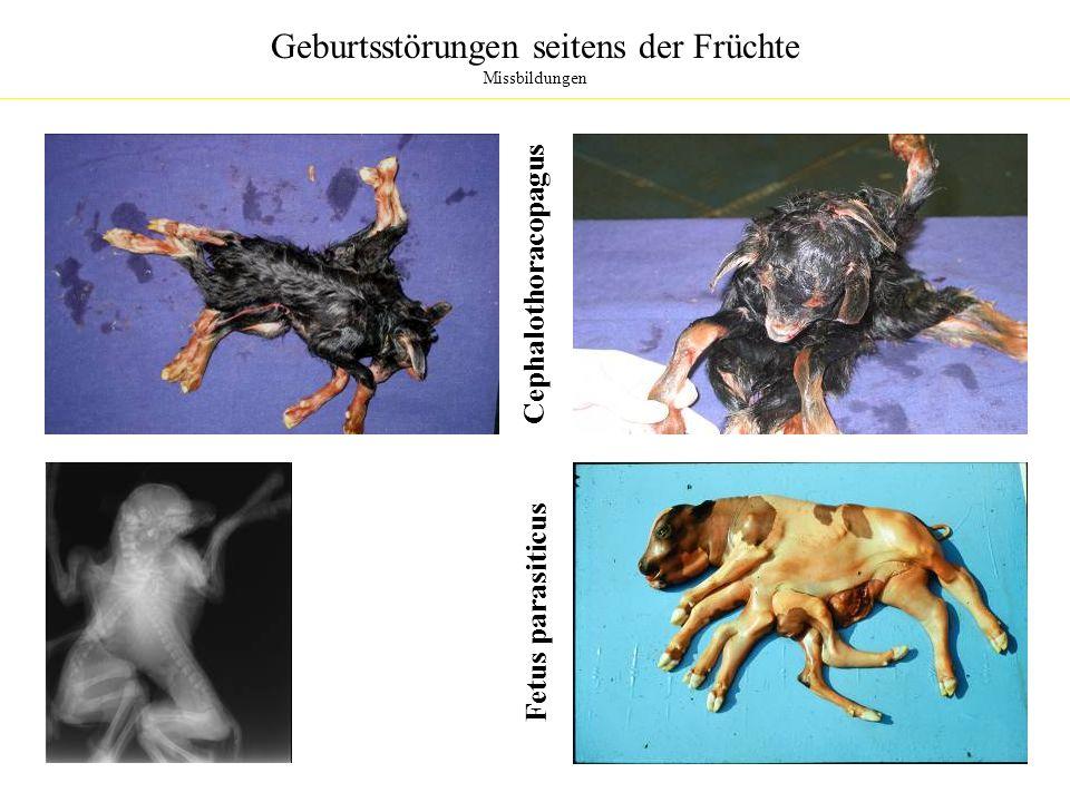 Geburtsstörungen seitens der Früchte Missbildungen Cephalothoracopagus Fetus parasiticus
