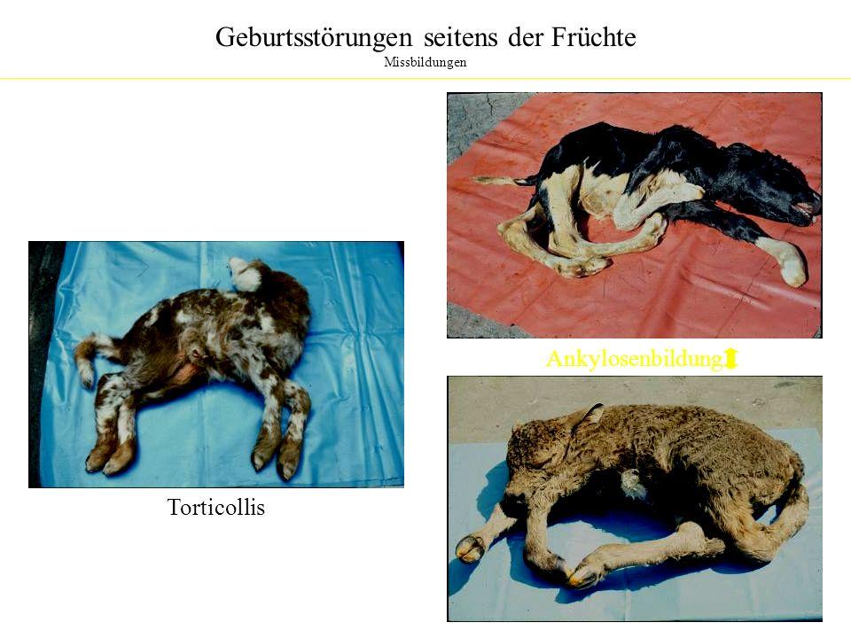 Geburtsstörungen seitens der Früchte Missbildungen TorticollisAnkylosenbildung