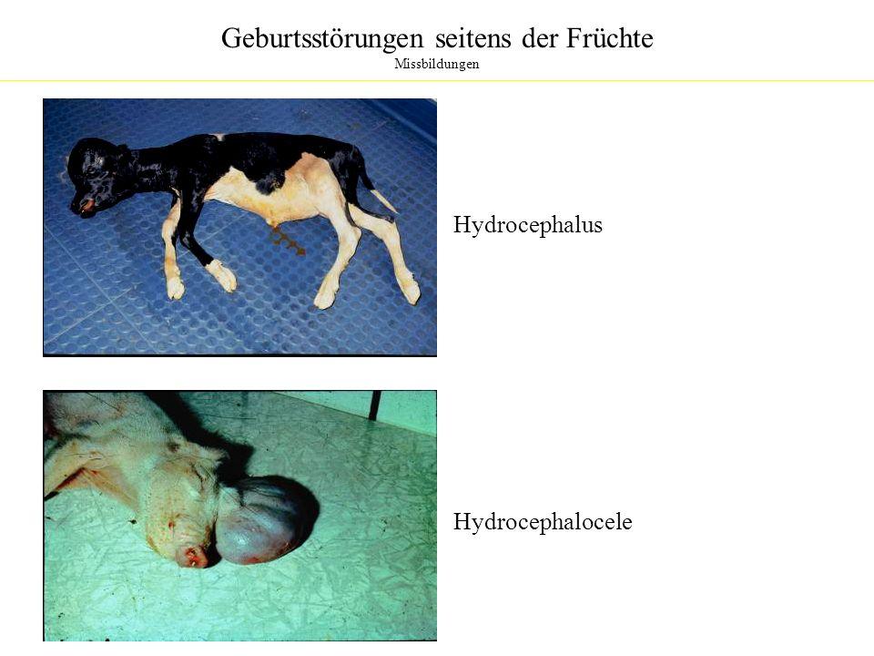 Geburtsstörungen seitens der Früchte Missbildungen Hydrocephalus Hydrocephalocele