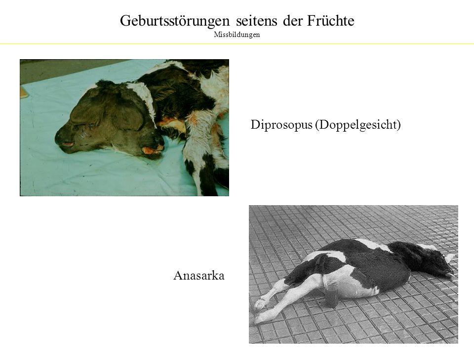 Geburtsstörungen seitens der Früchte Missbildungen Diprosopus (Doppelgesicht) Anasarka