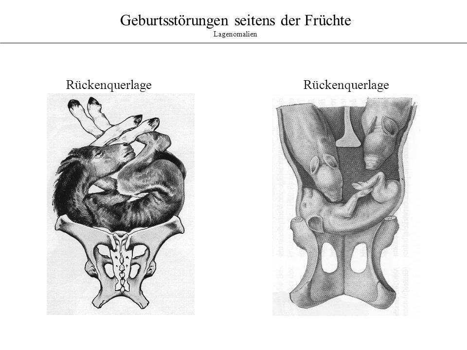 Geburtsstörungen seitens Eihaut und Fruchtwasser Plazentanomalien Isthmusplazenta des Rindes: - In Nähe des Orificium internum uteri - dichte ringförmige Besetzung mit kleinen Plazentomen - vermutlich erblich bedingt - Blutungen in der Öffnungsphase - mögliche Einengung des Corpus uteri - unzureichende Weitung des weichen Geburtsweges Hypertrophe Plazentome: - gelegentlich beim Rind - Riesenplazentome (500 - 600g) - bei Verletzung der Plazentome, unstillbare Blutungen (Rettung fraglich) - Sectio caesarea (Ligaturen) - Fetotomie unter größter Vorsicht