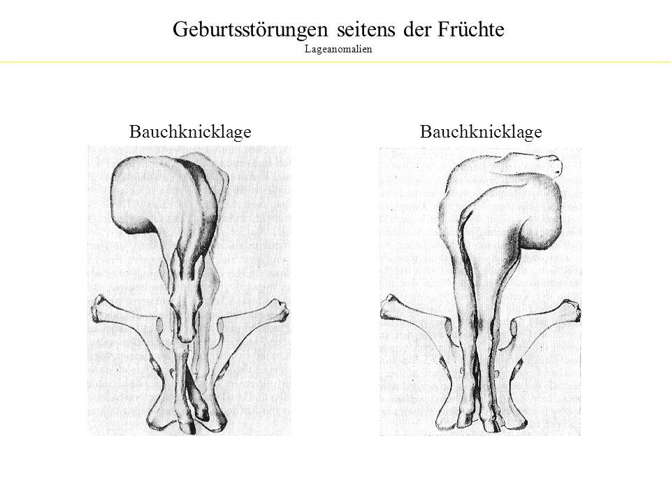 Geburtsstörungen seitens der Früchte Lageanomalien Bauchknicklage