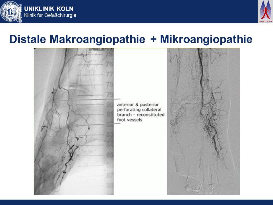 UNIKLINIK KÖLN Klinik für Gefäßchirurgie Distale Makroangiopathie + Mikroangiopathie