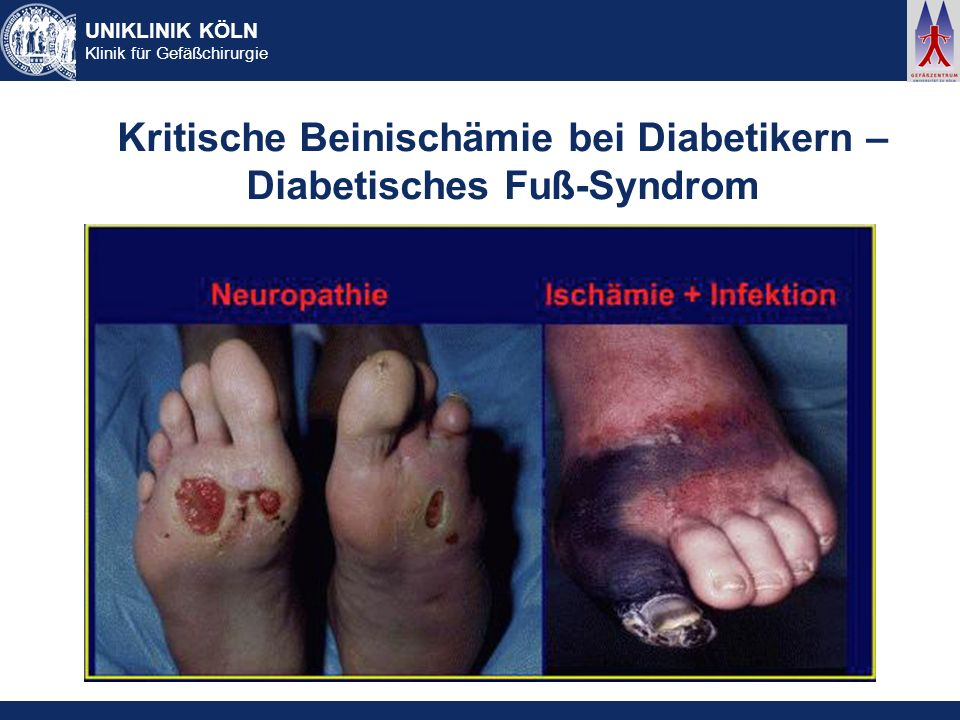 UNIKLINIK KÖLN Klinik für Gefäßchirurgie Kritische Beinischämie bei Diabetikern – Diabetisches Fuß-Syndrom