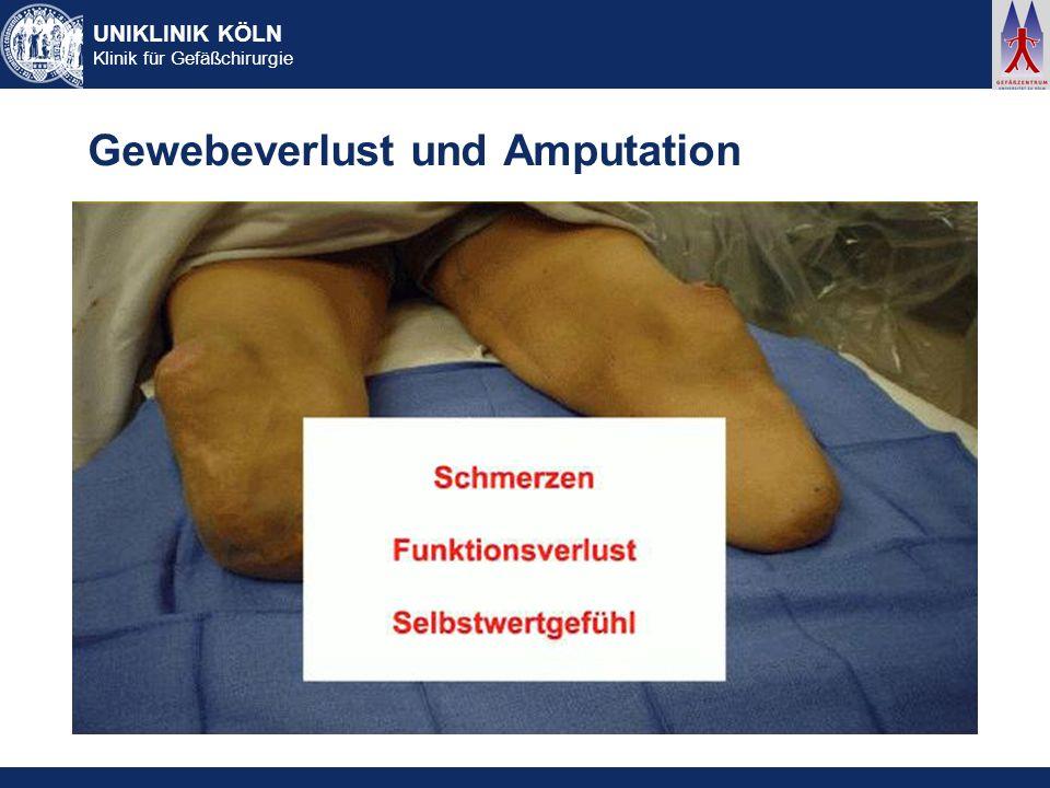 UNIKLINIK KÖLN Klinik für Gefäßchirurgie Gewebeverlust und Amputation