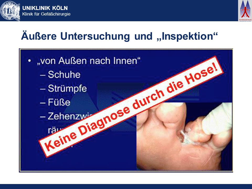 UNIKLINIK KÖLN Klinik für Gefäßchirurgie Äußere Untersuchung und Inspektion