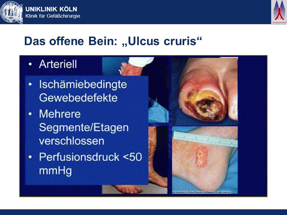 UNIKLINIK KÖLN Klinik für Gefäßchirurgie Das offene Bein: Ulcus cruris