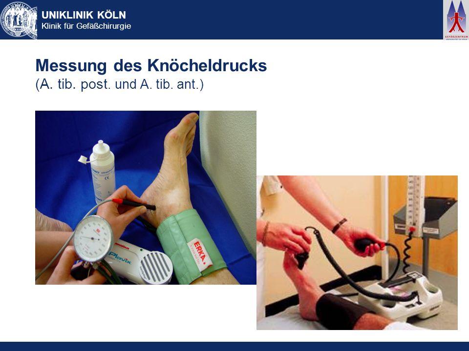 UNIKLINIK KÖLN Klinik für Gefäßchirurgie Messung des Knöcheldrucks (A. tib. post. und A. tib. ant.)