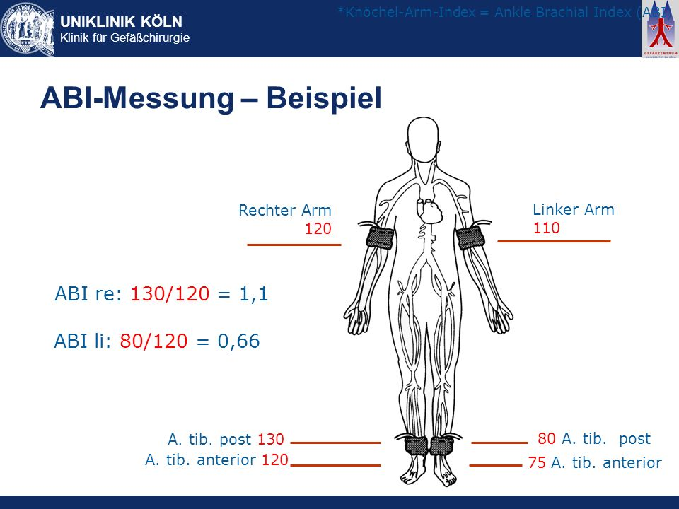 UNIKLINIK KÖLN Klinik für Gefäßchirurgie ABI-Messung – Beispiel Rechter Arm 120 Linker Arm 110 A. tib. post 130 A. tib. anterior 120 80 A. tib. post 7