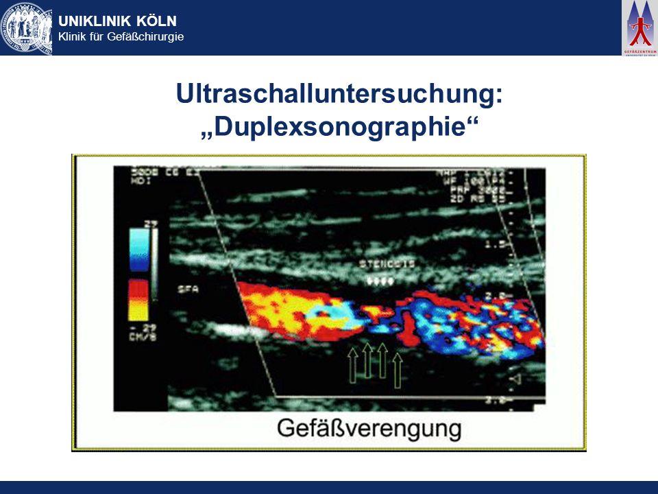 UNIKLINIK KÖLN Klinik für Gefäßchirurgie Ultraschalluntersuchung: Duplexsonographie