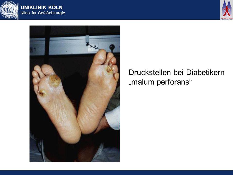 UNIKLINIK KÖLN Klinik für Gefäßchirurgie Druckstellen bei Diabetikern malum perforans
