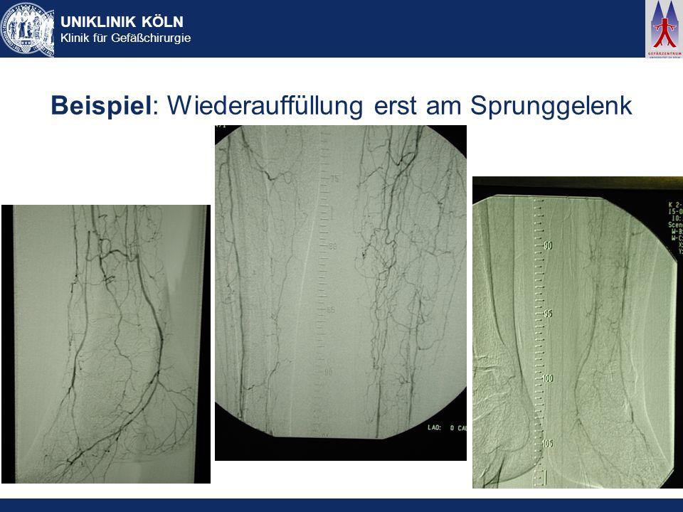 UNIKLINIK KÖLN Klinik für Gefäßchirurgie Beispiel: Wiederauffüllung erst am Sprunggelenk