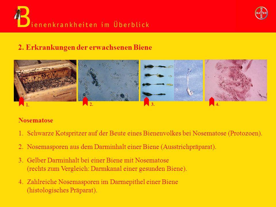 2. Nosemasporen aus dem Darminhalt einer Biene (Ausstrichpräparat). Nosematose 3. Gelber Darminhalt bei einer Biene mit Nosematose (rechts zum Verglei