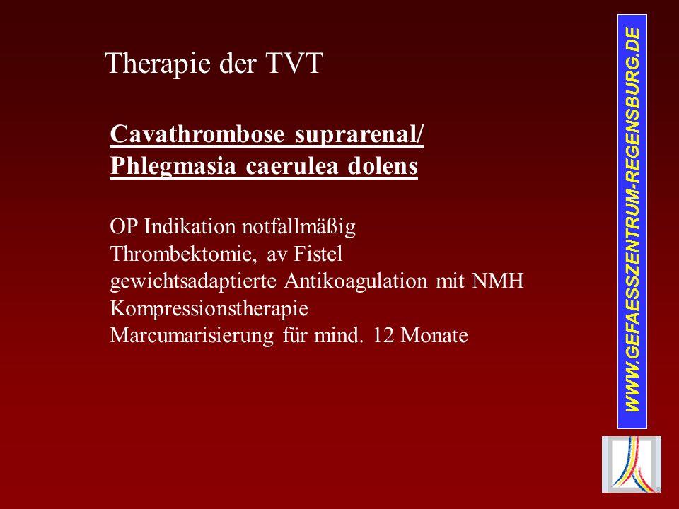 WWW.GEFAESSZENTRUM-REGENSBURG.DE Therapie der TVT Cavathrombose suprarenal/ Phlegmasia caerulea dolens OP Indikation notfallmäßig Thrombektomie, av Fi