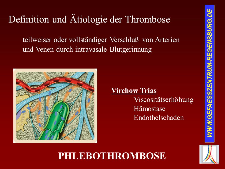 WWW.GEFAESSZENTRUM-REGENSBURG.DE Definition und Ätiologie der Thrombose Virchow Trias Viscositätserhöhung Hämostase Endothelschaden teilweiser oder vo