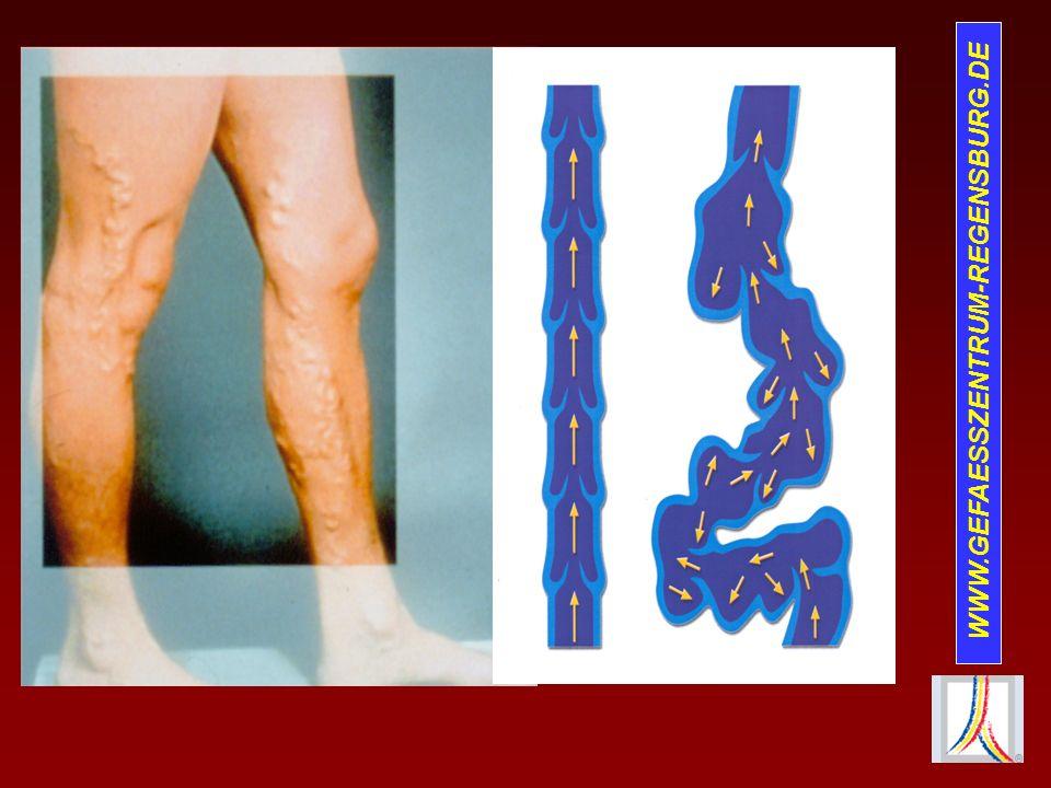 Risiken und Probleme der Thrombose Postthrombotisches Syndrom Lungenembolie