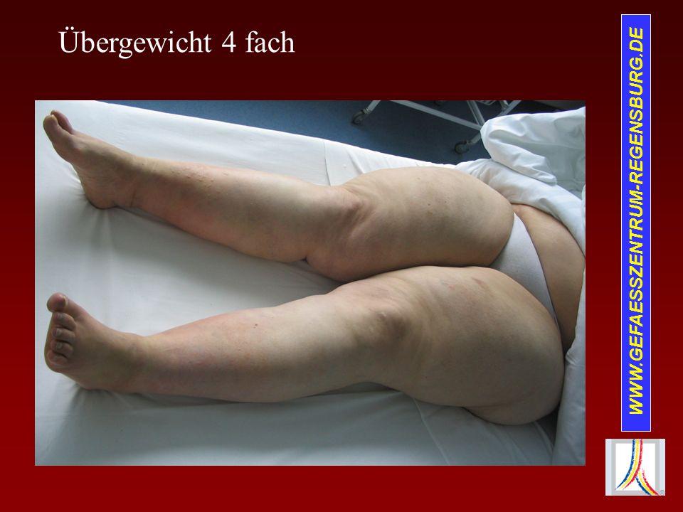 WWW.GEFAESSZENTRUM-REGENSBURG.DE Therapie der TVT Ursachenabklärung!.