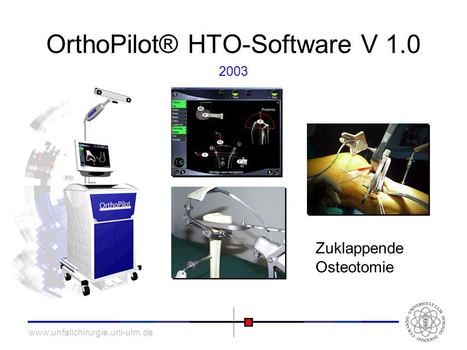 www.unfallchirurgie.uni-ulm.de OrthoPilot® HTO-Software V 1.0 Zuklappende Osteotomie 2003