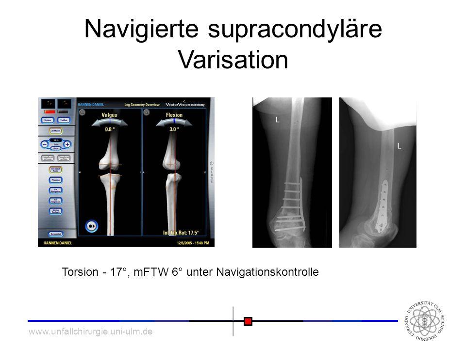 www.unfallchirurgie.uni-ulm.de Navigierte supracondyläre Varisation Torsion - 17°, mFTW 6° unter Navigationskontrolle