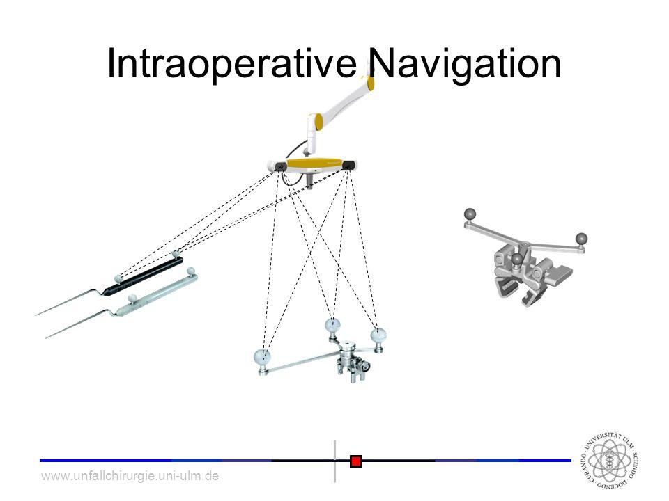 www.unfallchirurgie.uni-ulm.de Intraoperative Navigation