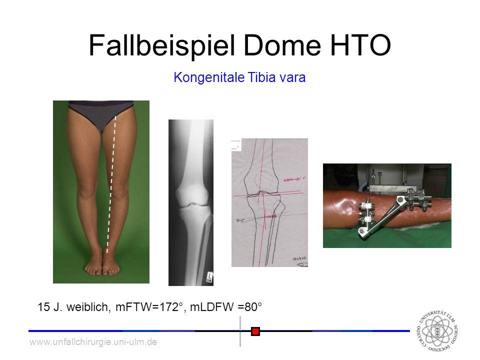 www.unfallchirurgie.uni-ulm.de Fallbeispiel Dome HTO Kongenitale Tibia vara Postoperative Analyse: mFTW=179°
