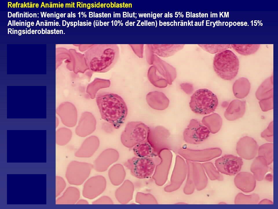 Refraktäre Anämie mit Ringsideroblasten Definition: Weniger als 1% Blasten im Blut; weniger als 5% Blasten im KM Alleinige Anämie. Dysplasie (über 10%
