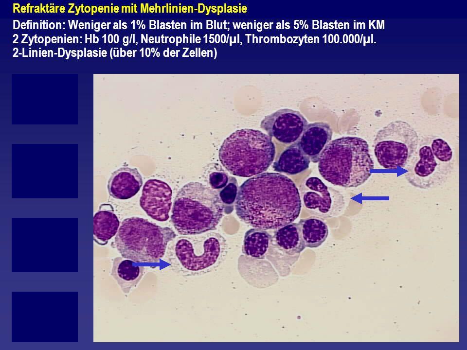Refraktäre Zytopenie mit Mehrlinien-Dysplasie Definition: Weniger als 1% Blasten im Blut; weniger als 5% Blasten im KM 2 Zytopenien: Hb 100 g/l, Neutr