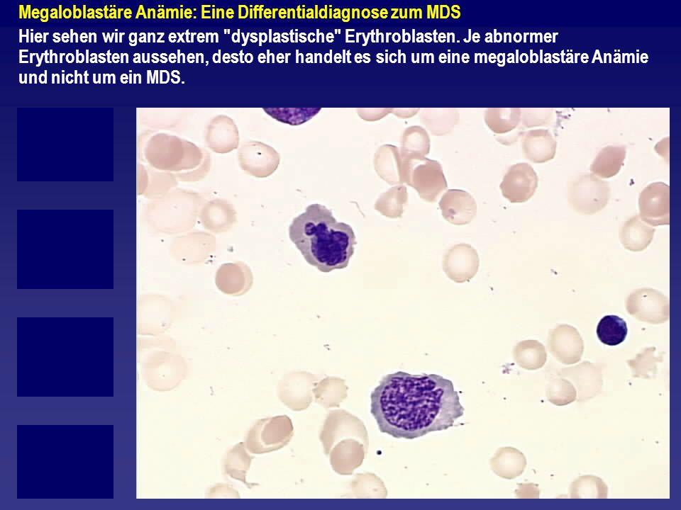 Megaloblastäre Anämie: Eine Differentialdiagnose zum MDS Hier sehen wir ganz extrem