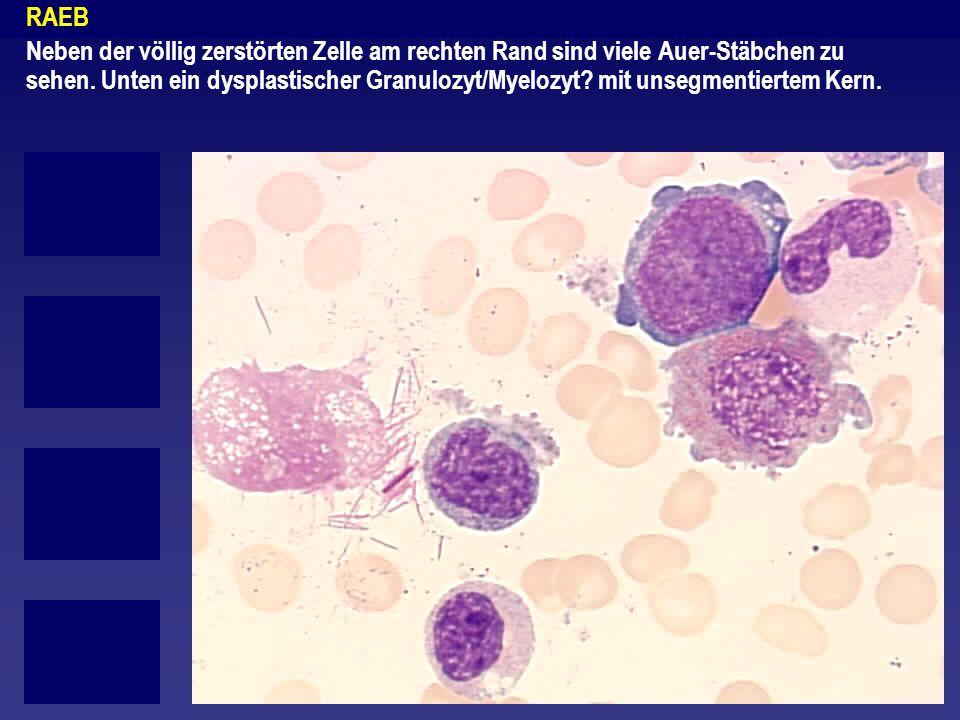 RAEB Neben der völlig zerstörten Zelle am rechten Rand sind viele Auer-Stäbchen zu sehen. Unten ein dysplastischer Granulozyt/Myelozyt? mit unsegmenti