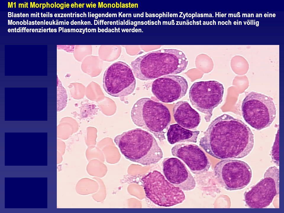 M1 mit Morphologie eher wie Monoblasten Blasten mit teils exzentrisch liegendem Kern und basophilem Zytoplasma. Hier muß man an eine Monoblastenleukäm