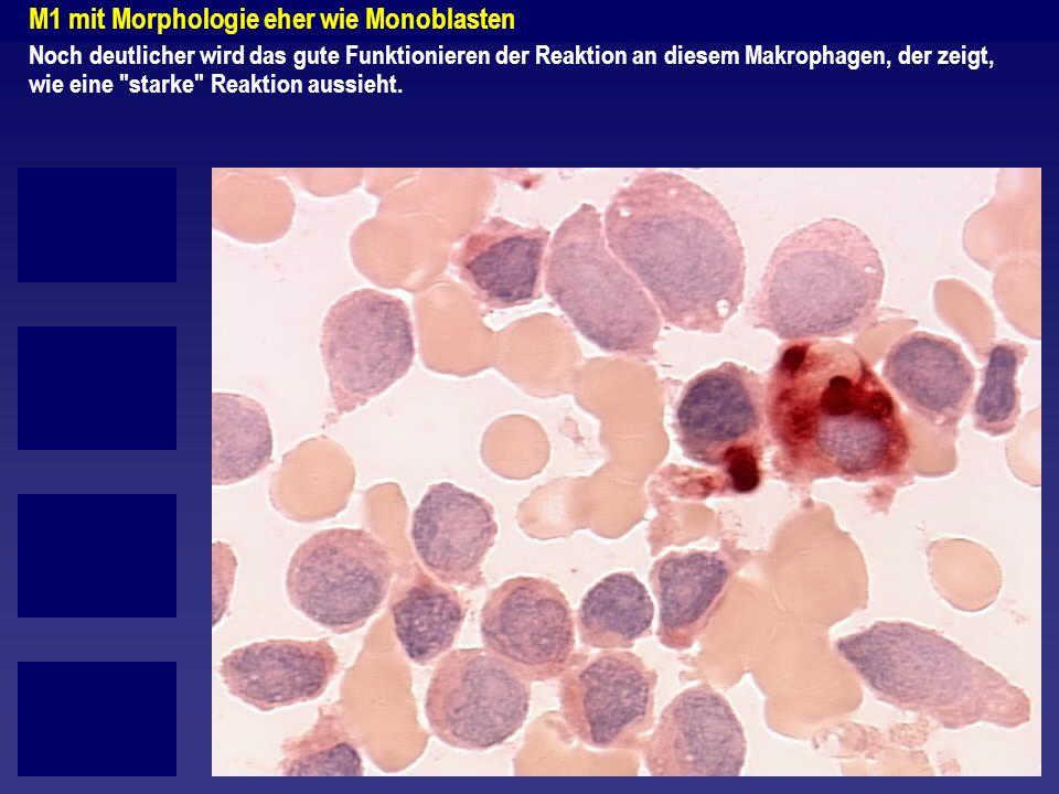 M1 mit Morphologie eher wie Monoblasten Noch deutlicher wird das gute Funktionieren der Reaktion an diesem Makrophagen, der zeigt, wie eine