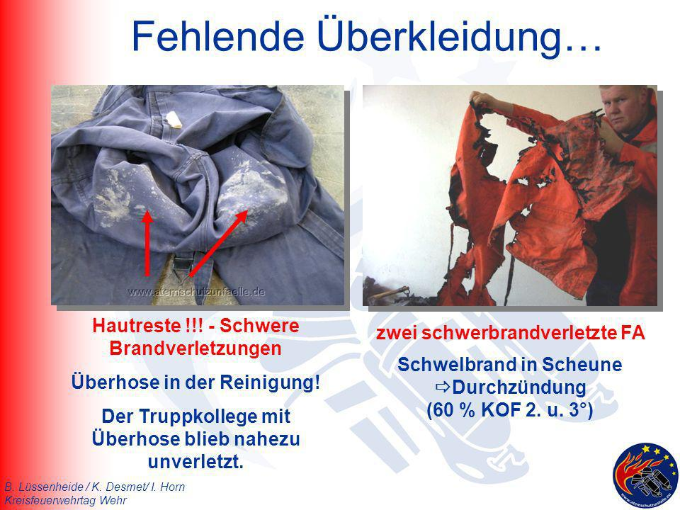 B. Lüssenheide / K. Desmet/ I. Horn Kreisfeuerwehrtag Wehr Fehlende Überkleidung… Hautreste !!! - Schwere Brandverletzungen Überhose in der Reinigung!