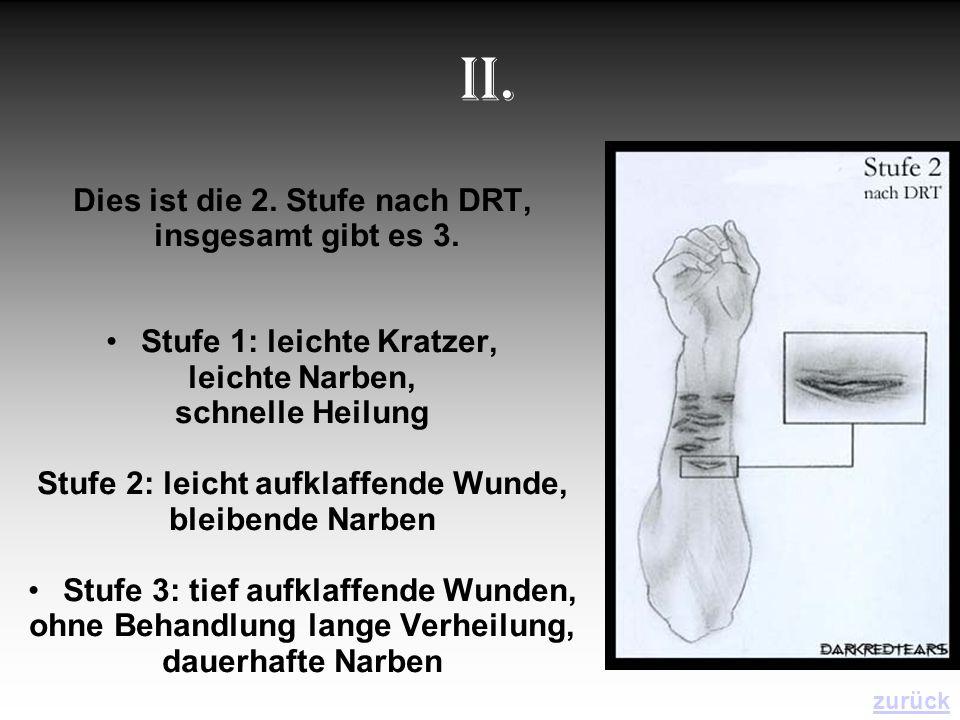 II. Dies ist die 2. Stufe nach DRT, insgesamt gibt es 3. Stufe 1: leichte Kratzer, leichte Narben, schnelle Heilung Stufe 2: leicht aufklaffende Wunde