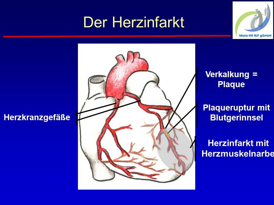 Der Herzinfarkt Herzkranzgefäße Verkalkung = Plaque Plaqueruptur mit Blutgerinnsel Herzinfarkt mit Herzmuskelnarbe
