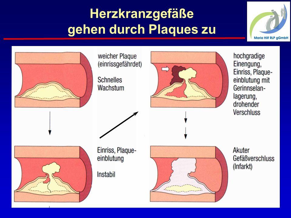 Die Gefäßverkalkung Unterschiedliche Typen von verletzlichen Plaques normal Ruptur = Herzinfarkt Plötzlicher Herztod Circulation 2003; 108:1664
