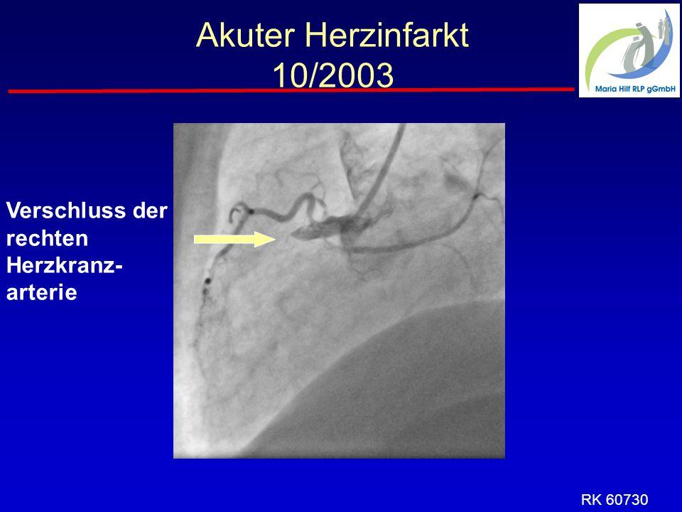 Akuter Herzinfarkt 10/2003 Verschluss der rechten Herzkranz- arterie RK 60730