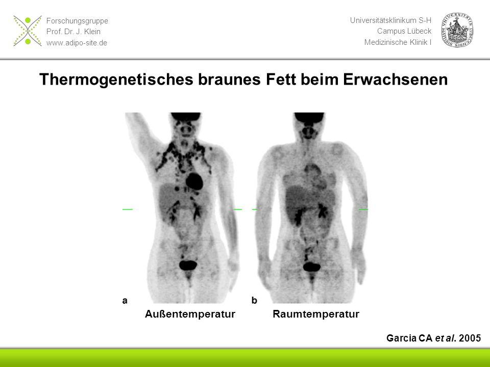Forschungsgruppe Prof. Dr. J. Klein www.adipo-site.de Universitätsklinikum S-H Campus Lübeck Medizinische Klinik I AußentemperaturRaumtemperatur Garci