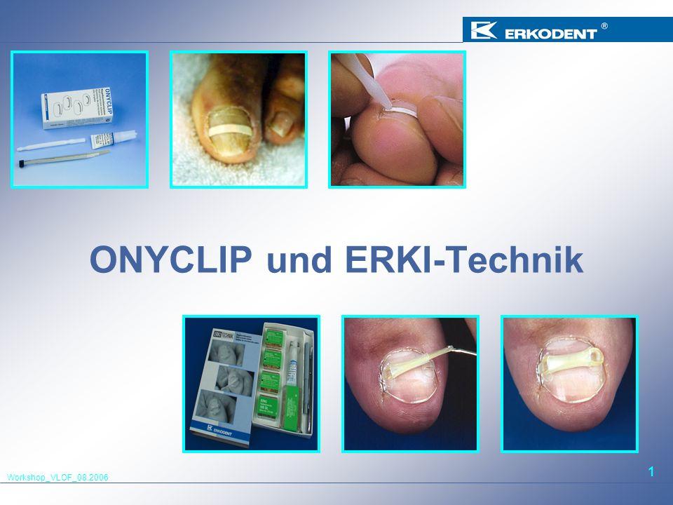 Workshop_VLOF_08.2006 1 ONYCLIP und ERKI-Technik