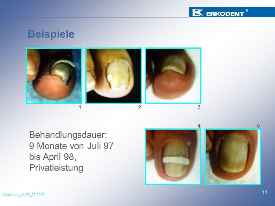 Workshop_VLOF_08.2006 11 Beispiele Behandlungsdauer: 9 Monate von Juli 97 bis April 98, Privatleistung 123 54