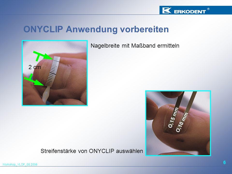Workshop_VLOF_08.2006 6 ONYCLIP Anwendung vorbereiten 2 cm O,15 mm O,10 mm Nagelbreite mit Maßband ermitteln Streifenstärke von ONYCLIP auswählen