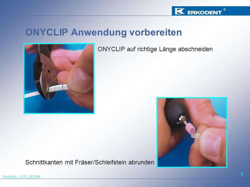 Workshop_VLOF_08.2006 7 ONYCLIP Anwendung vorbereiten ONYCLIP auf richtige Länge abschneiden Schnittkanten mit Fräser/Schleifstein abrunden