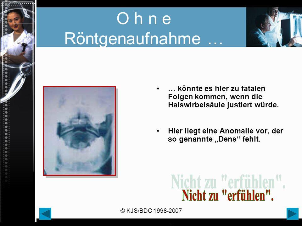© KJS/BDC 1998-2007 O h n e Röntgenaufnahme … … könnte es hier zu fatalen Folgen kommen, wenn die Halswirbelsäule justiert würde. Hier liegt eine Anom